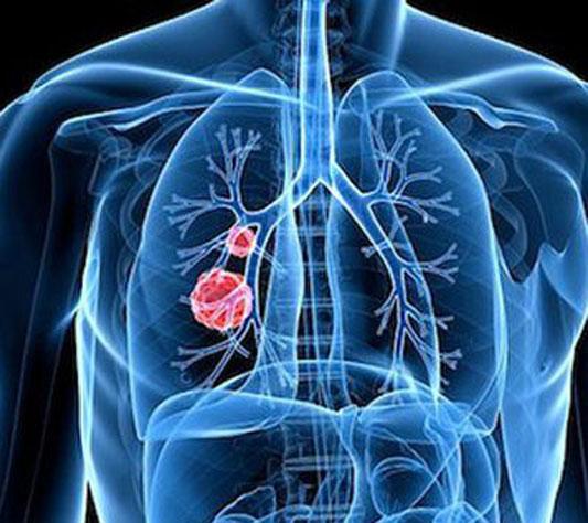细胞肺癌伴纵膈淋巴结转移